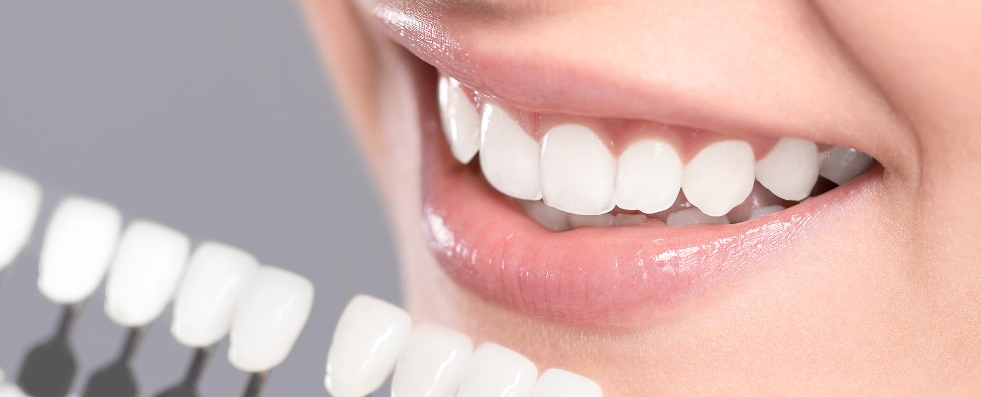 Bleachen für weiße Zähne