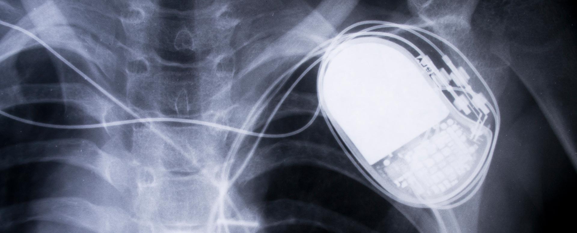 Was können Ultraschall, MRT und CT?